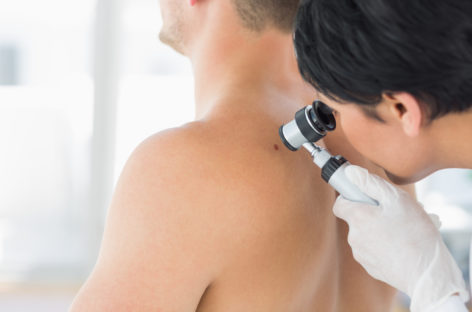 Getting Treatment for Your Skin Cancer