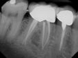 3 Key Benefits Of Undergoing a Root Canal Treatment Under The Care Of a Camp Springs Dentist