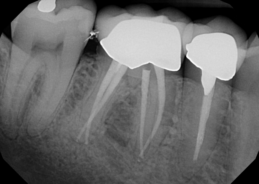 3 Key Benefits Of Undergoing a Root Canal Treatment Under ...