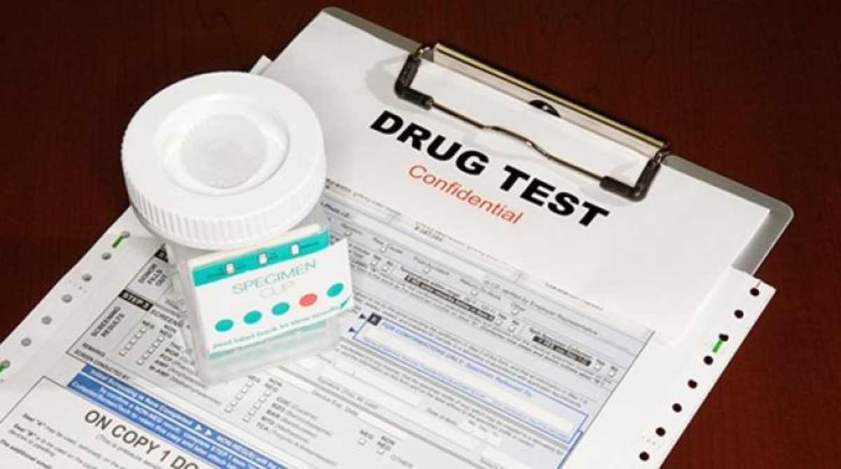 How to Pass a Drug Screen Test Efficiently?