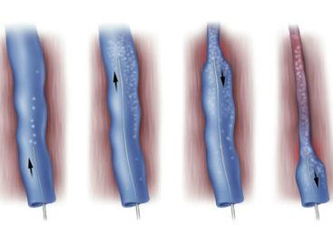 What Is Vein Foam Treatment?