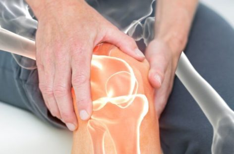 Common Remedies for Arthritis