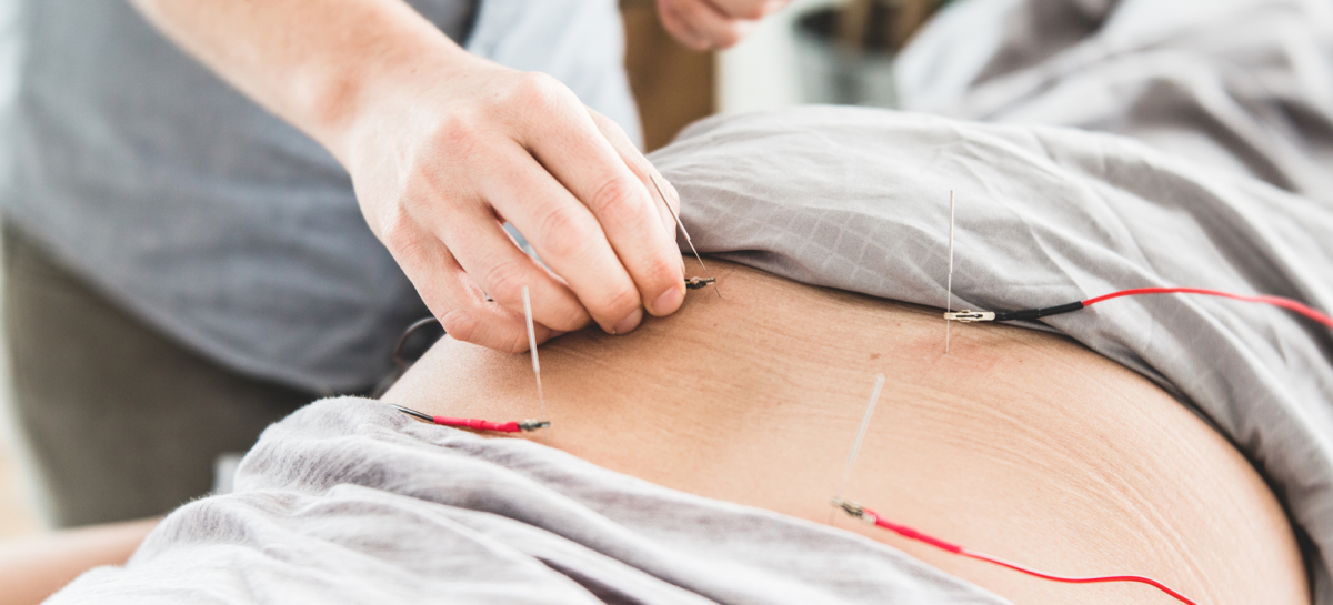 Electroacupuncture: What Is It & What Are The Benefits?