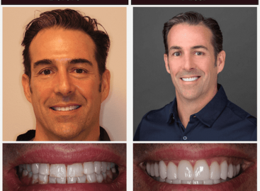 Scott Young DDS – Dental Implants Specialists in the Woodlands, TX
