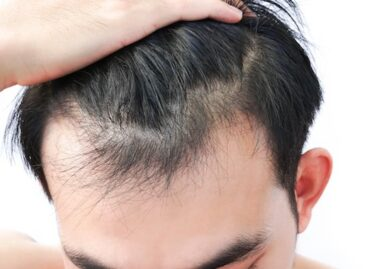Caring & Compassionate Hair Loss Specialist in Florida