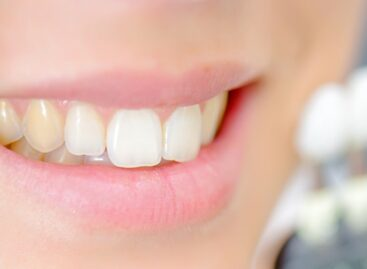 Teeth Whitening: Cosmetic Remedy for Stained, Yellow, and Discolored Teeth