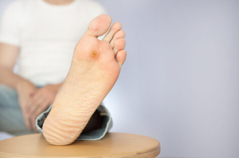 What You Need to Know About Diabetic Ulcers
