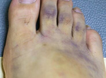 Foot Discoloration Treatments to Improve Your Looks