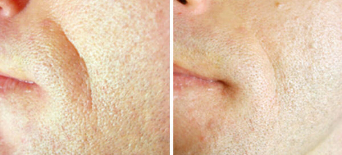Turn Back the Effects of Aging With TempSure Envi Laser Treatment