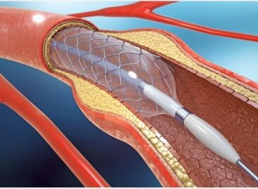 What You Need to Know About Stenting