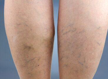 Everything That You Need to Know About Varicose Veins