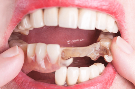 Learning How to Prepare for Dentures to Get the Best Dentist-Patient Experience