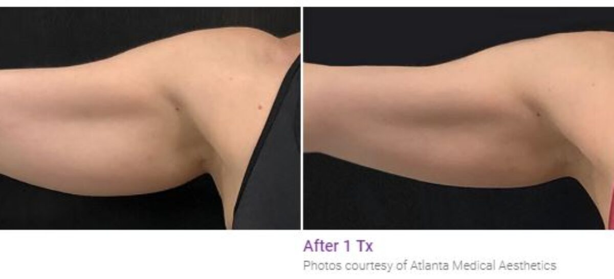 Eliminate Stubborn and Exercise-Resistant Body Fat With Body Sculpting