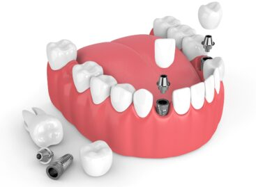 The Three Qualities to Consider When Choosing the Right Dental Implant Expert