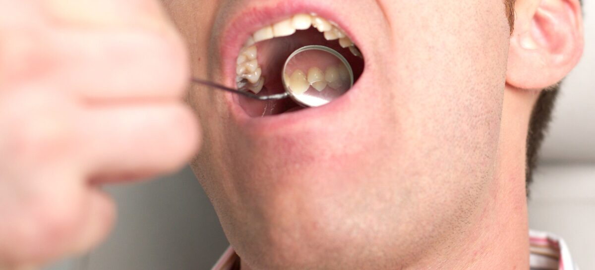 Why You Should Consider Extracting Your Wisdom Teeth